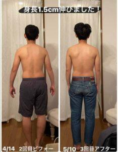 姿勢改善 身長up 体の痛み軽減