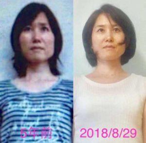 骨格美セラピー 顔 変化