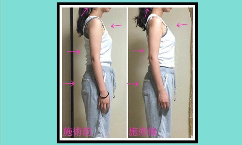 首凝り 肩こり 腰痛 生理痛 改善